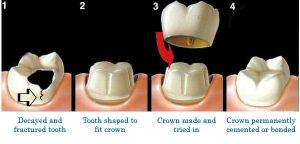 royalparkdental-dentist-west-lakes